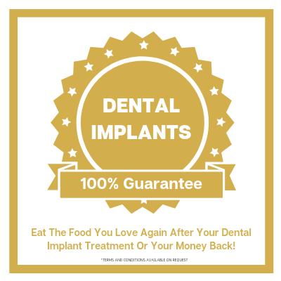 dental implants guarantee