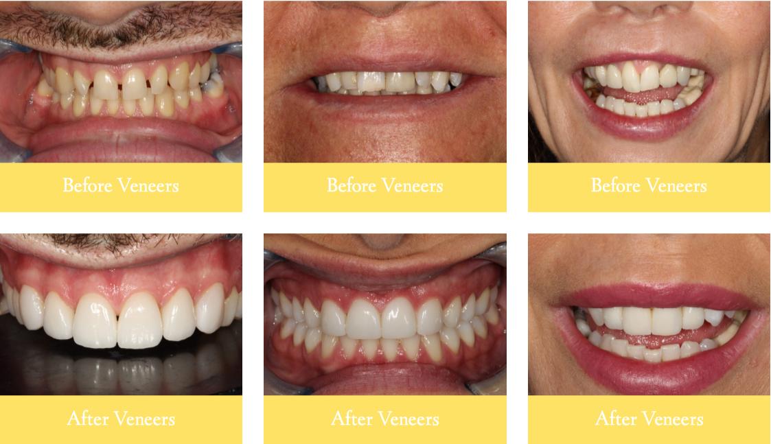Examples Of Veneers Treatment